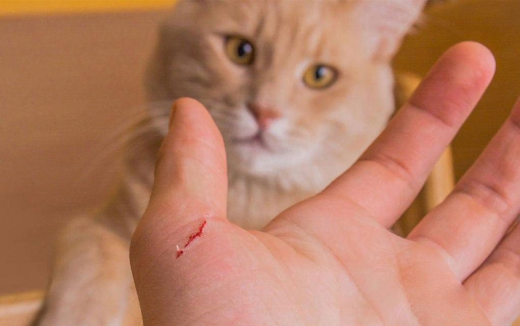 Bartoneloza – choroba kociego pazura.
